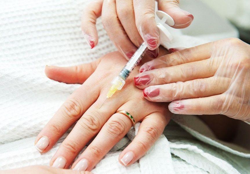 Плазмолифтинг рук